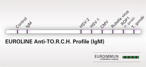EUROLINE Anti-TO.R.C.H. Profile
