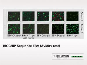 BIOCHIP Sequence EBV (Avidity Test)