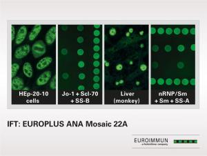 IIFT EUROPLUS ANA Mosaic 22A