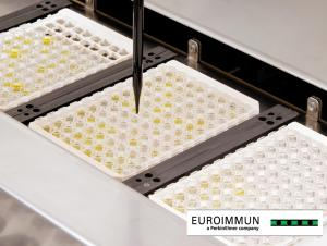 Automated processing of ELISA