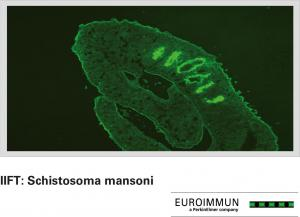 IIFT: Schistosoma mansoni