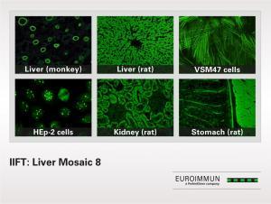 IIFT Liver Mosaic 8