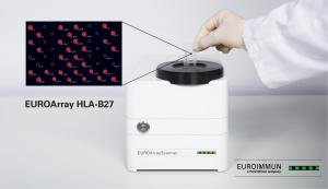 EUROArray HLA-B27 Direct