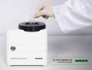 EUROArrayScanner: Automated evaluation of microarrays