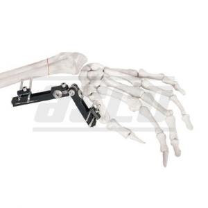 Distal Radius Fragment External Fixator Articulated Minirail Fixator Multiplanar Axis