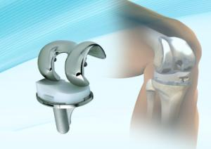 Knees - MicroPort