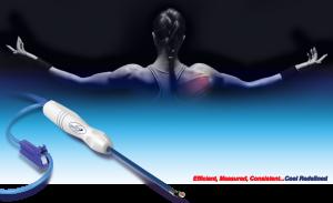Velox™ RF Wand – Velocity Orthopedics Product Development