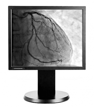 Lumimaxx G11S 1MP Grayscale Medical Display Screen