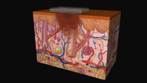 The Smart Melanoma Diagnostic Sticker