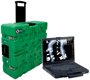 DIARM™ MW Mobile DR Suitcase System