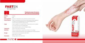 treatment cream for burns & wound healing