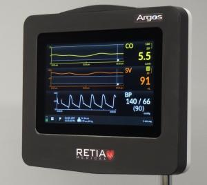 The Argos Monitor is intuitive and easy-to-use.