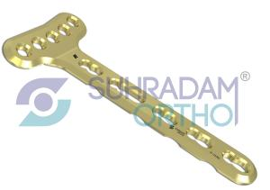 2.7mm LCP Distal Radius Plate, Extra-Articular [05 hole head]