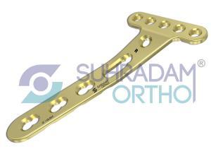 2.7mm LCP Distal Radius Plate, Juexta Articular