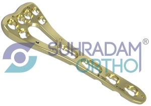 2.4/2.7mm LCP Variable Angle Two-column Volar Distal Radius Plate [06 hole head]